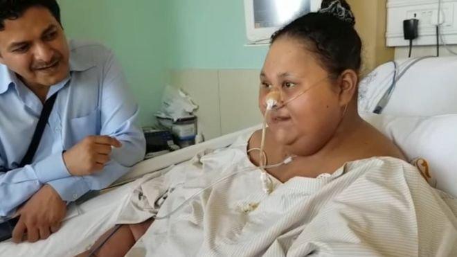 В Индии женщина потеряла 250 килограмм лишнего веса