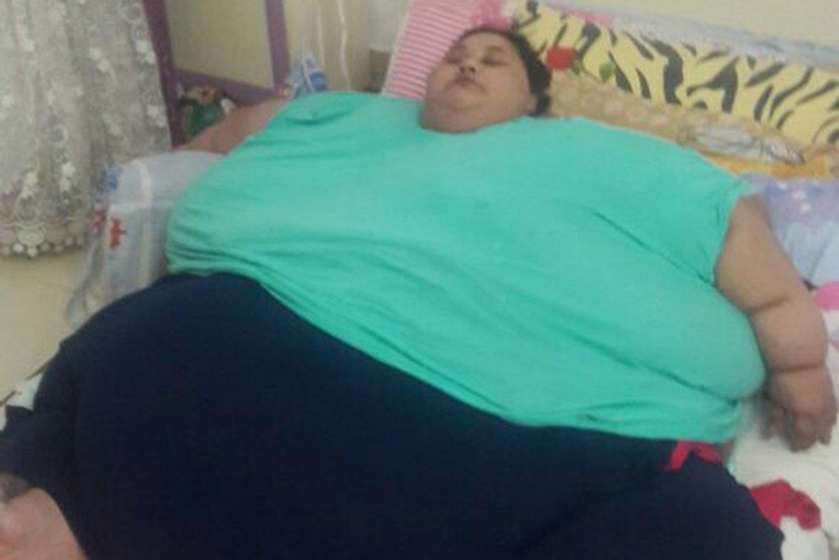 Самая тяжелая женщина вмире сбросила 330 килограммов