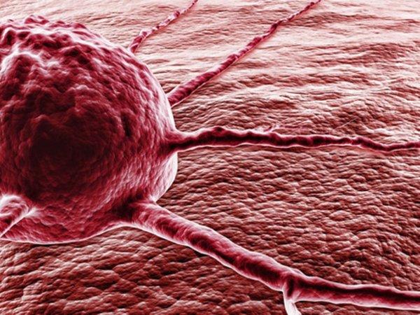 ТОП-10 новейших методов борьбы с раком
