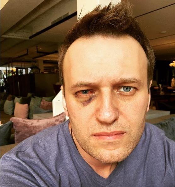 Прооперированный вИспании Навальный вернулся в Российскую Федерацию