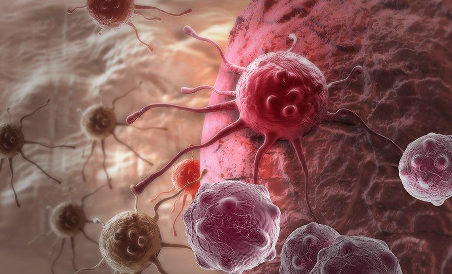 Учёные отследили эволюцию раковой отдельной опухоли