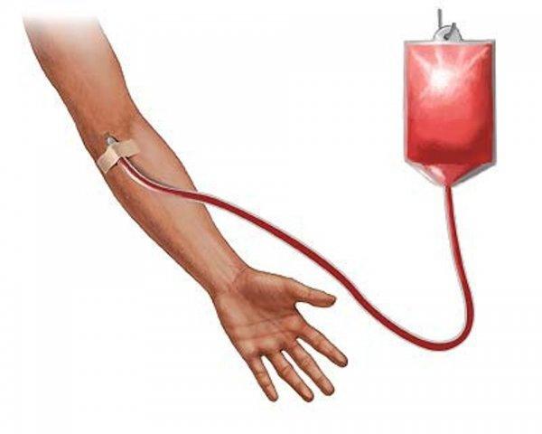 """Переливание """"молодой"""" крови помогает спастись от болезней сердца"""