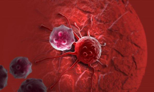 Медики объяснили, почему раковые клетки не уничтожаются в организме людей