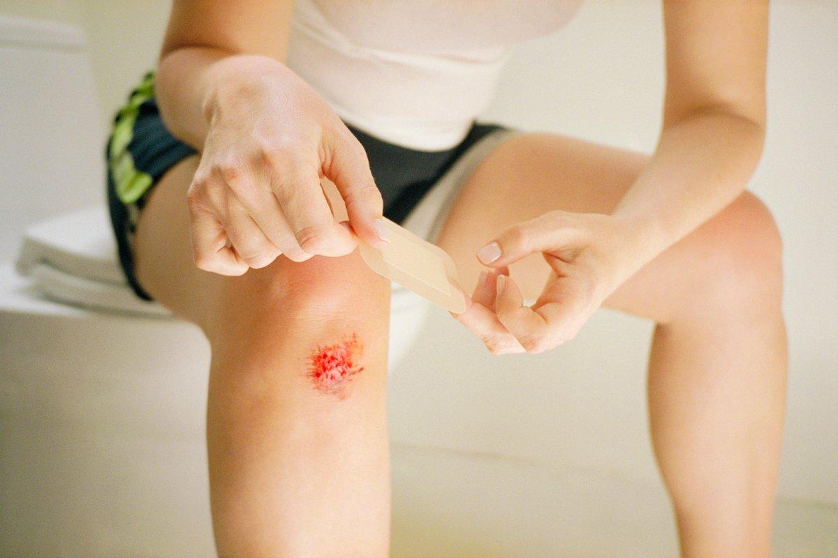 Чем лечить рану содранная кожа
