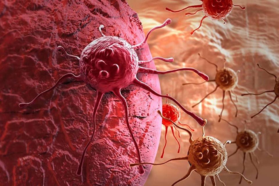 Ученые научились заставлять раковые клетки голодать