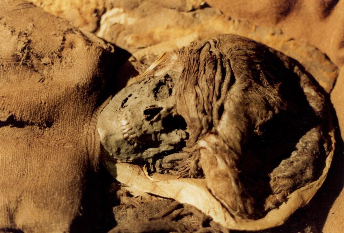 Американские ученые обнаружили рак уегипетской мумии
