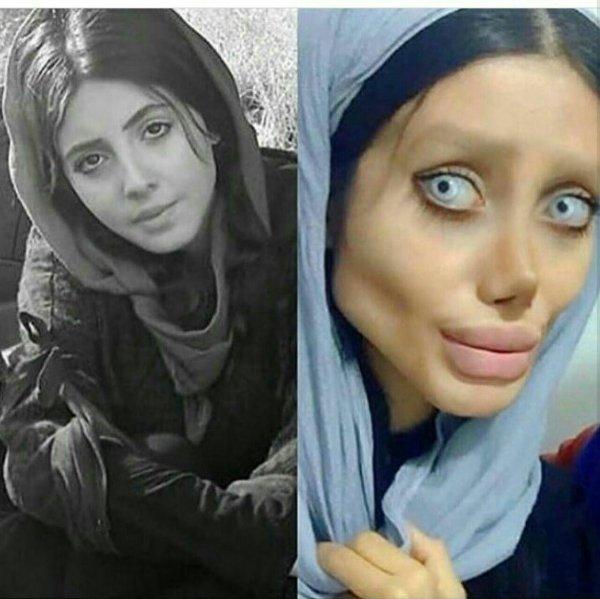 Иранская фанатка Анджелины Джоли пережила 50 пластических операций и стала похожей на зомби