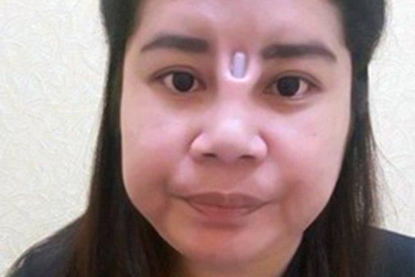 Неудачная ринопластика изуродовала жительницу Таиланда