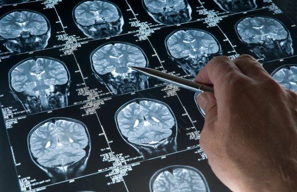 Сотрясение мозга определят по анализу крови