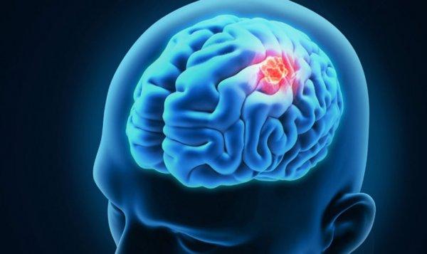 Мозг воздействует на переохлаждение при низкой температуре