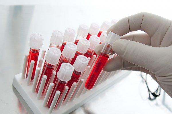 Житель Подмосковья не предупредил партнёршу и заразил её ВИЧ-инфекцией