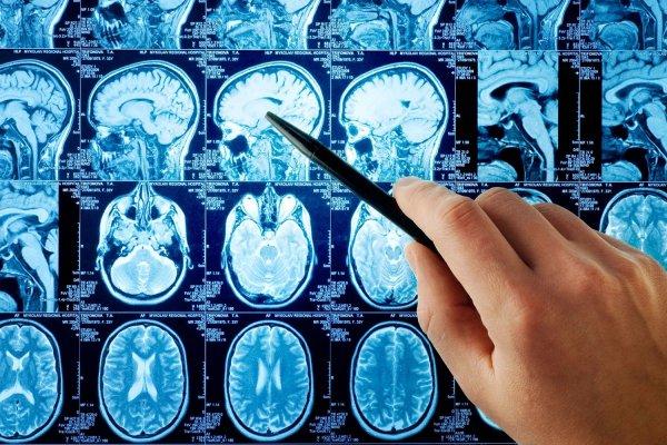 Ученые вычислят инсульт за 30 секунд