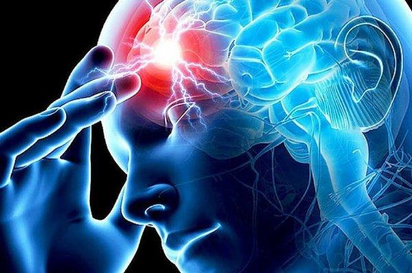 Учёные выяснили, как инсульт влияет на организм человека