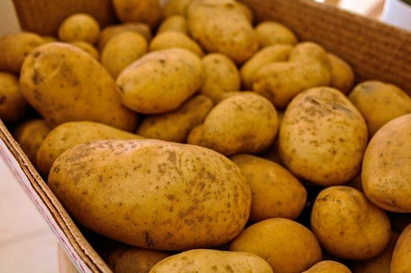 Испанка живёт за стеклом из-за редких заболеваний, вызванных картошкой