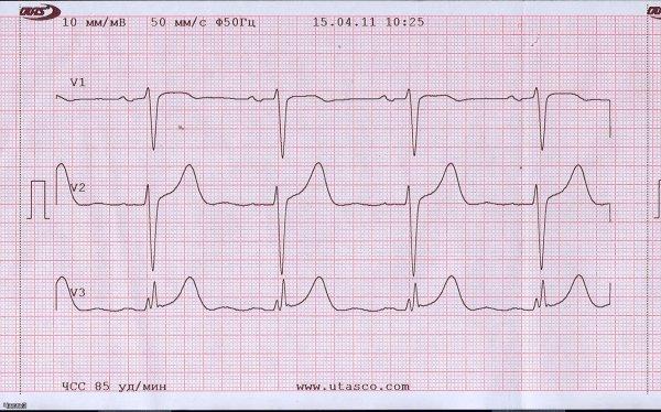 Ученые из Челябинска получили патент на футболку, которая способна снимать кардиограмму