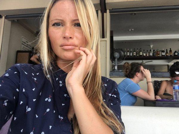 Прыщи и пигментные пятна: Дана Борисова расстроила фанатов проблемным лицом