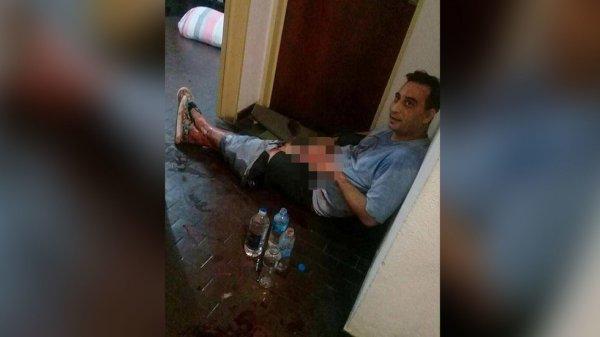 В Аргентине девушка садовыми ножницами отрезала своему парню половой член