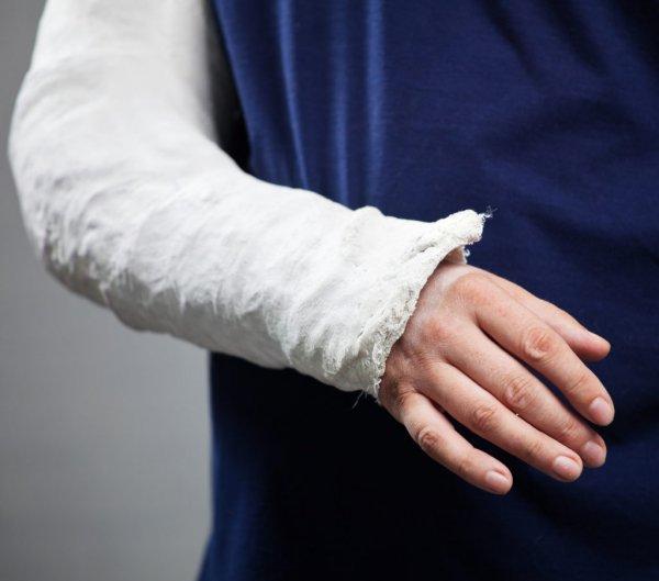 Ученые создали клей, восстанавливающий сломанную кость за 5 минут