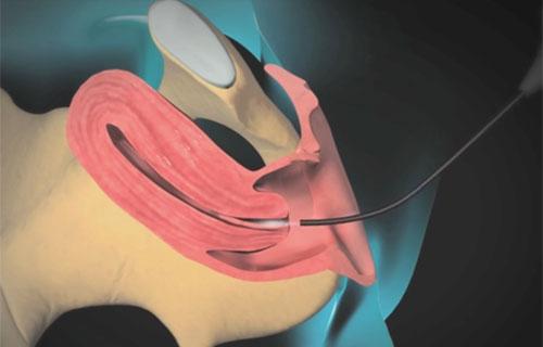 Гистероскопия и удаление полипа цервикального канала, отзывы об эндометрии