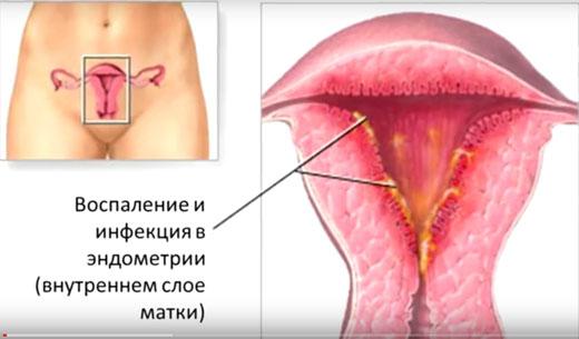 Полип эндометрия в матке как проходит операция
