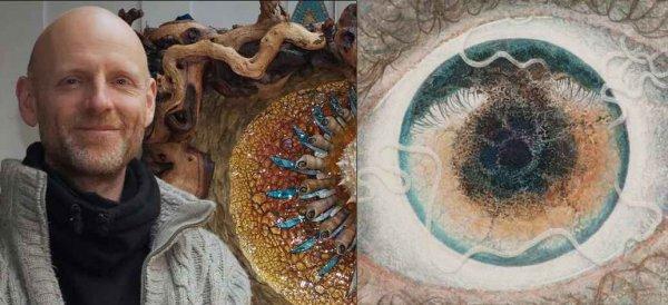 Мужчина с червями в глазах смог превратить болезнь в искусство