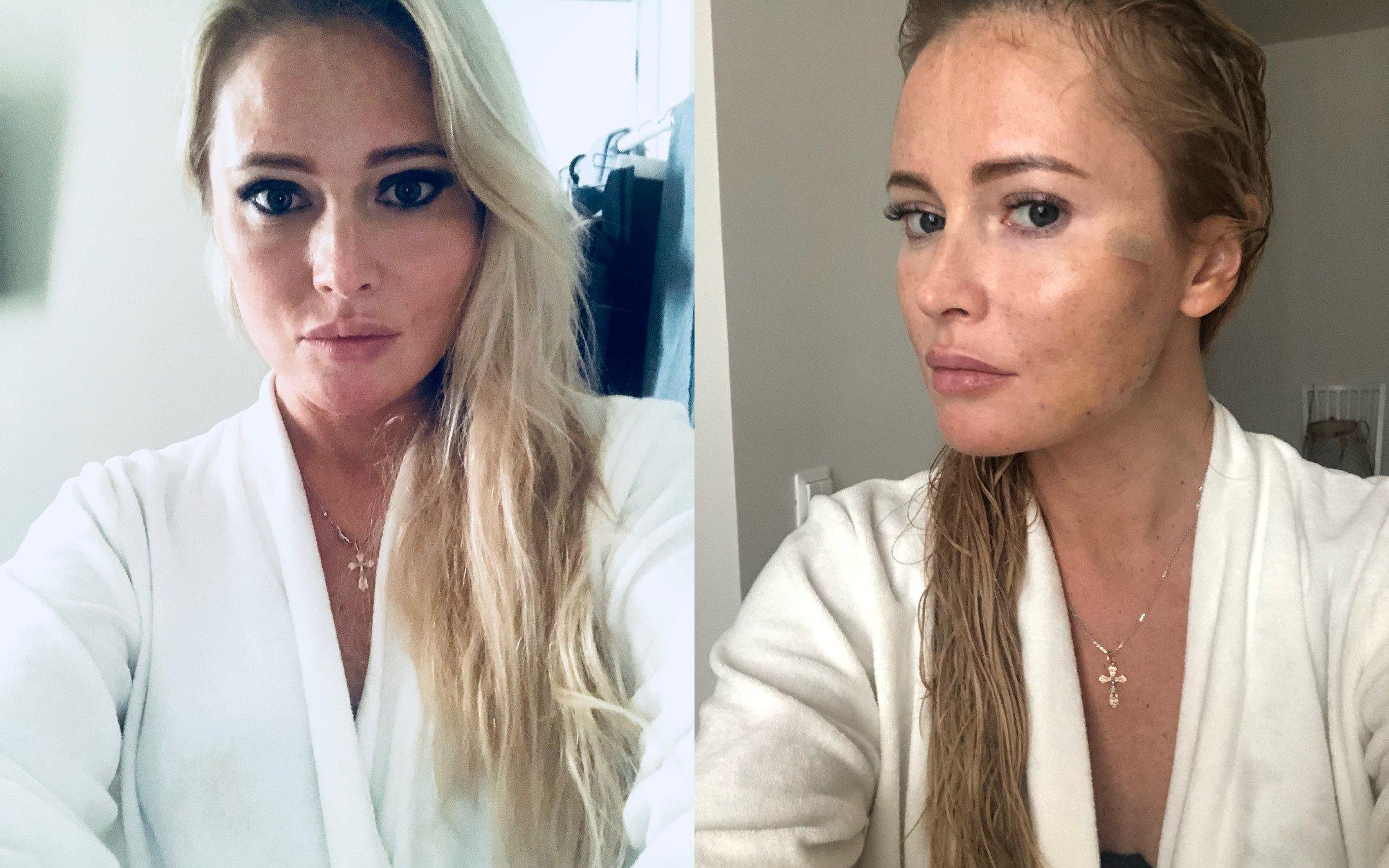 Запомните меня такой»  Дана Борисова спасает внешность очередной ... 1ad55733afd