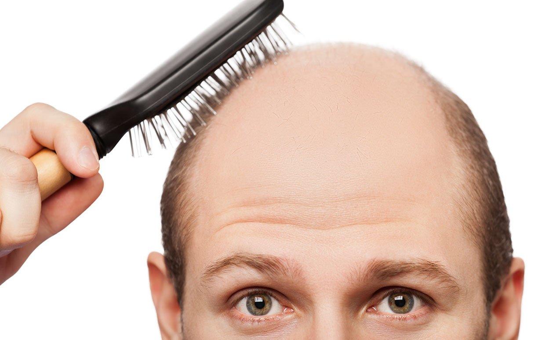 Ученые назвали продукты, содействующие выпадению волос