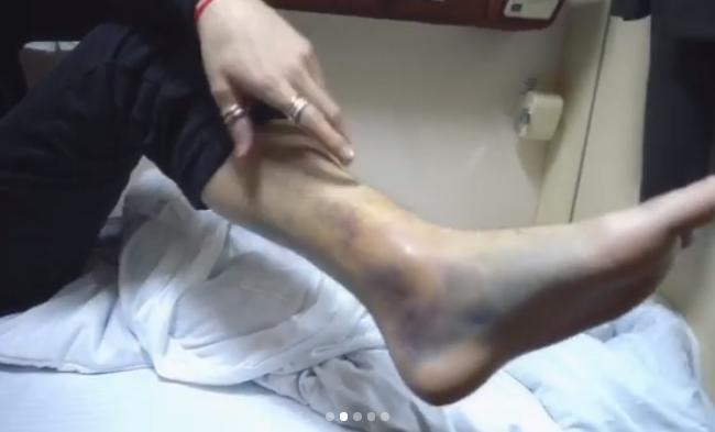 Билан спереломанными ногами 3 часа отжигал напитерской сцене