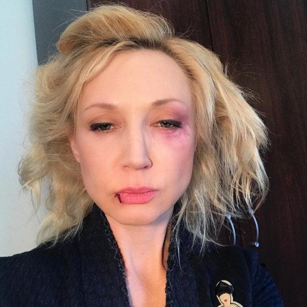 «Муж избил?»: Кристина Орбакайте с фингалом и разбитой губой ужаснула фанатов