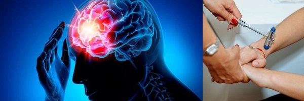 Возможно полное восстановление: Учёные разрабатывают новое лекарство для перенесших инсульт