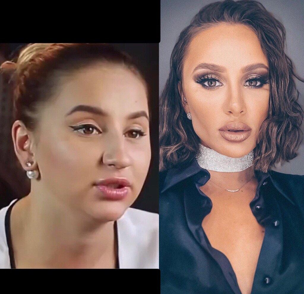 Одесская барби фото до и после локи является