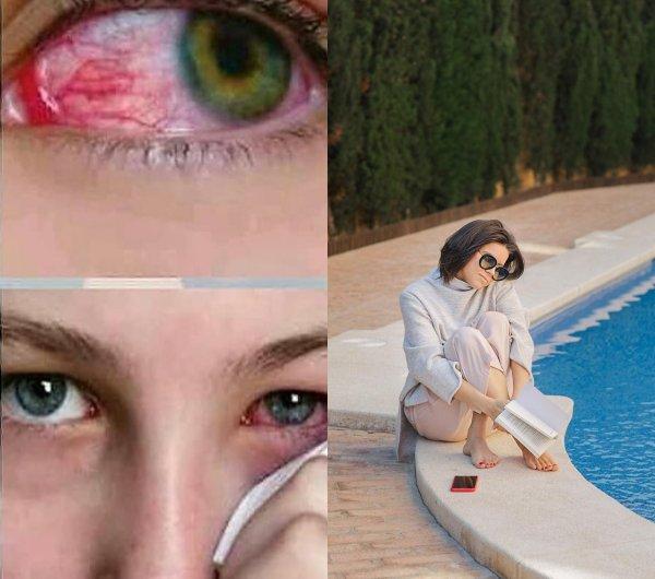 Заменить линзы на очки! Как защитить глаза от сезонной аллергии