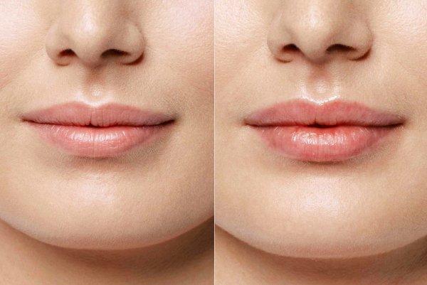 Как увеличить губы без инъекций. Временный, но эффективный способ