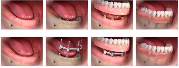 Имплантирование зубов Все на 4