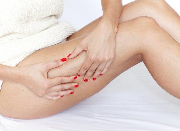 Звездочки на ногах. Как сделать ноги идеальными, рассказал эксперт